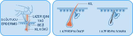 http://www.fizyomed.net/wp-content/uploads/2018/02/lazer-epilasyon-1.jpg